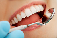 dental fillings